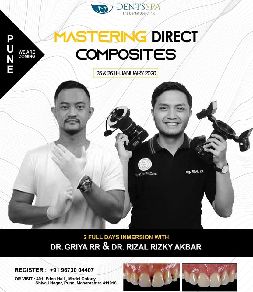Mastering Direct Composites
